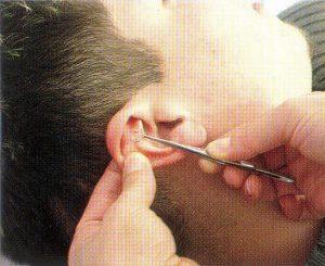 Ausies adatų terapija žimiai sustiprina korporalinės akupunktūros efektyvumą, padeda atsisakyti rūkymo ir sumažinti apetitą.